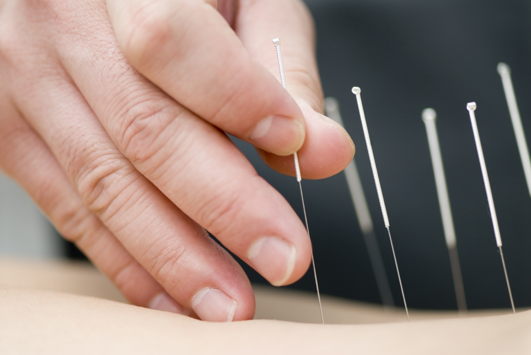 iStock_000004479493Medium1-dry-needling-multiple-needles1.jpg